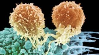 Células T atacando cáncer