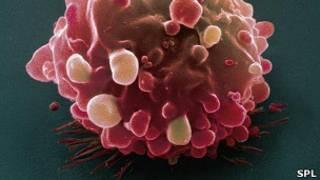 Célula cancerígena de colon