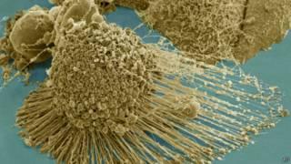 Célula cancerígena de Henrietta Lacks | Foto: AP