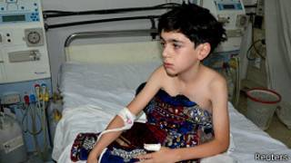 Niño afectado por el ataque del miércoles