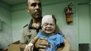 Criança ferida em bombardeio à escola da ONU. Crédito: AFP