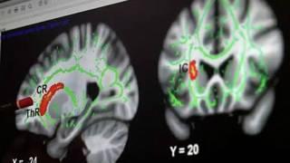 151124120758_brain_624x351_bbc_nocredit.