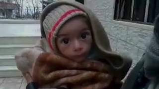 Niño en Madaya