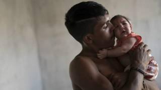Padre sostiene en brazos a bebé con microcefalia