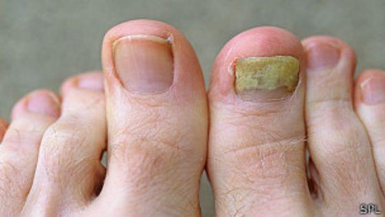 Como limpiar el calzado del hongo de los pie
