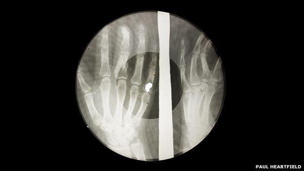 150129134625_x-ray_audio_bones-slide-49.