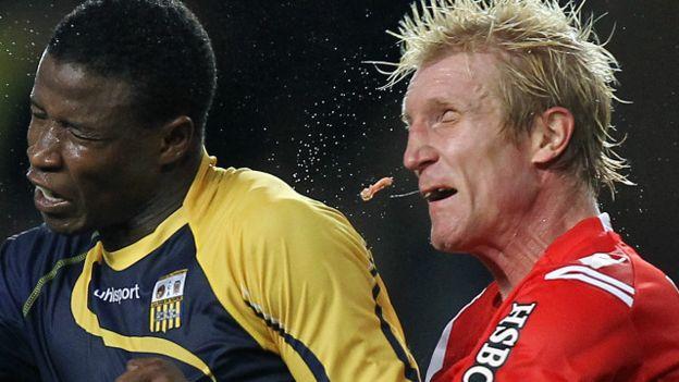 Fútbol y dientes