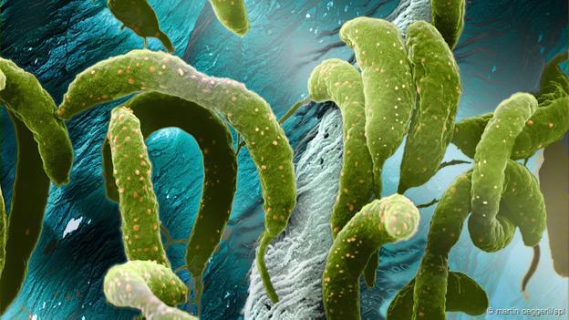 Caulobacter crescentus (Foto: Martin Oeggerli/SPL)