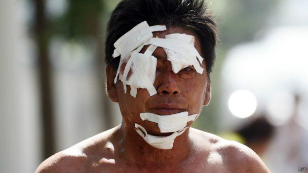 天津爆炸傷者
