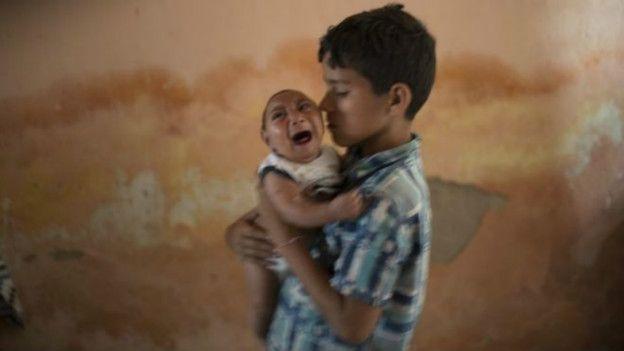 Menos sostiene a su hermano de dos meses, nacido con microencefalia.