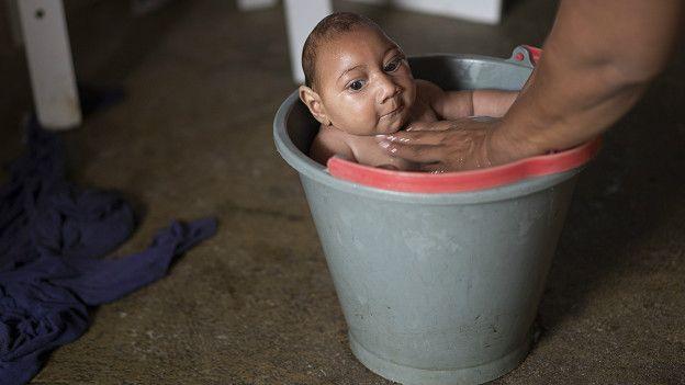 Una mujer baña a su hijo con microcefalia en Brasil.