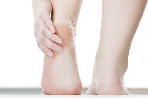 El tratamiento eficaz del hongo de la uña y los pie
