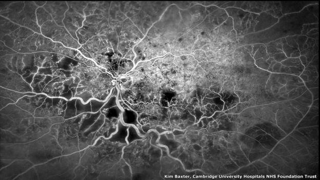 Vasos sanguíneos en el ojo. Kim Baxter, Universidad de Cambridge