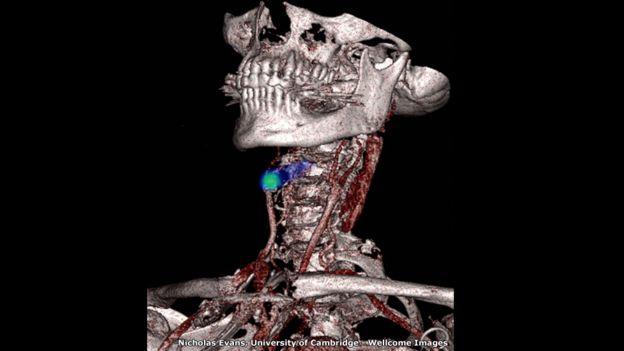 Escáner médico de Nicholas Evans, Universidad de Cambridge