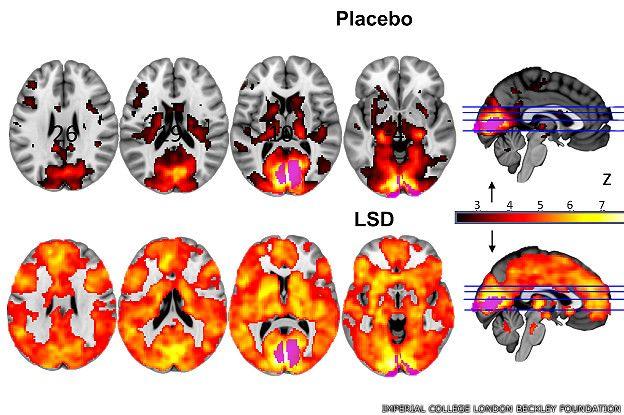 Escáner de cerebros que recibieron placebos, arriba, y LSD, abajo