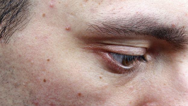 Joven con acné