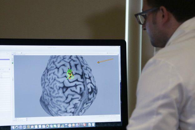 Un médico observa un cerebro en una computadora