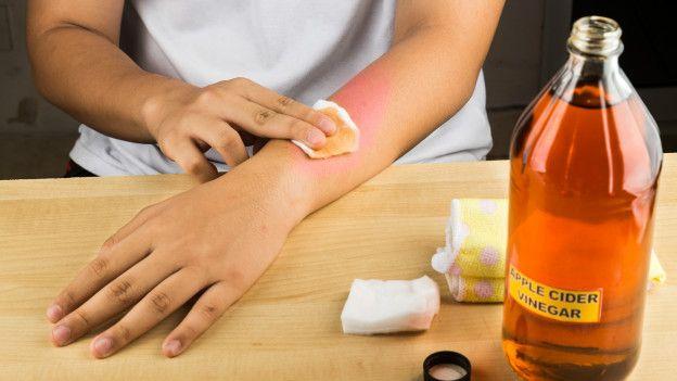 El vinagre de sidra de manzana también puede dejar tu piel irritada.