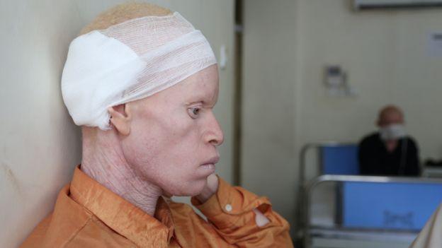 Albino con cáncer