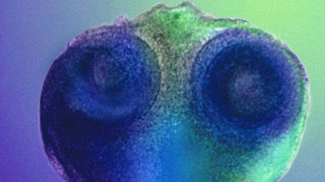 Cabeza de Hymenolepis nana