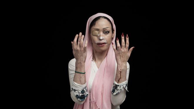 Shirin Mohamadi, de 18 años, sobreviviente de un ataque de ácido