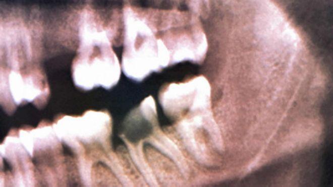 远古人类如何钻补龋齿治疗牙痛