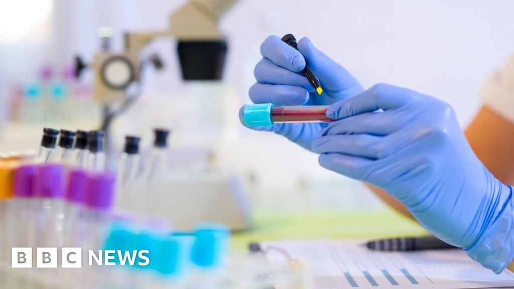 Cancer blood test 'enormously exciting'