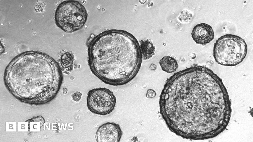 Mini-tumours' created to battle cancer