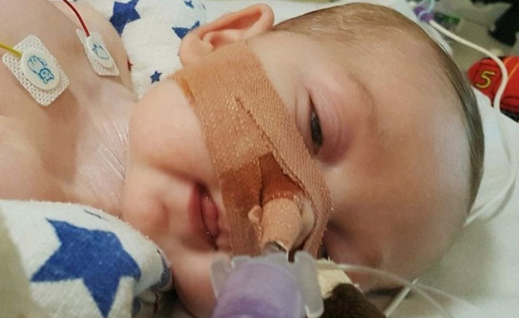 Charlie Gard: High Court hears dispute over baby's skull size