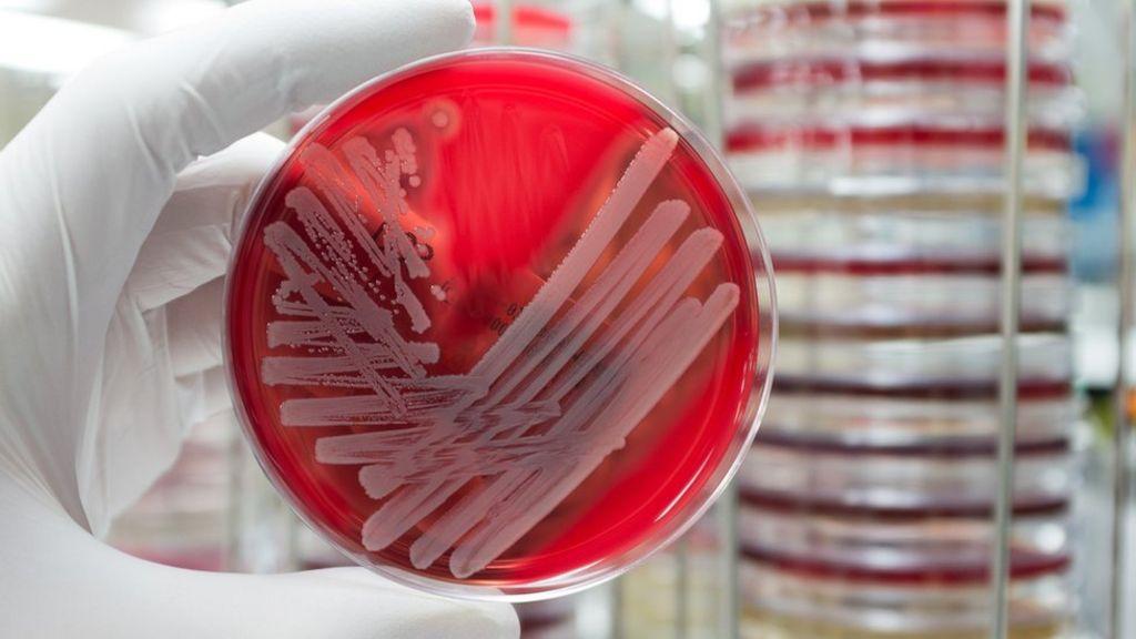 Superbug 'sleuthing' finds secret outbreaks