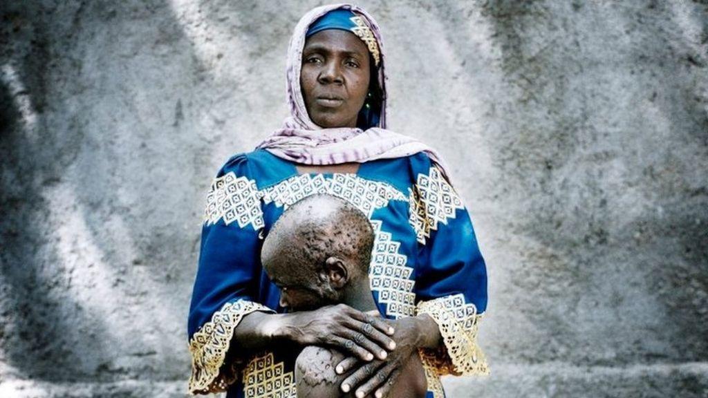 Falta Oumara, 40, kötü yanmış oğlu Modou ile birlikte, 7 kimliği Mémé'deki kadınlar ve çocuklar için gayriresmi bir yerinden olmuş kişinin kampında
