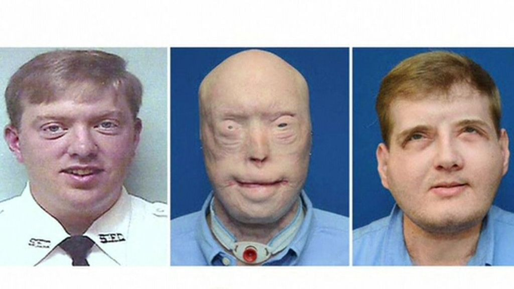 face transplants essay Project: surgery and facial transplant essay example face transplant: the first partial face transplant was done in amiens, france, in 2005five years later.
