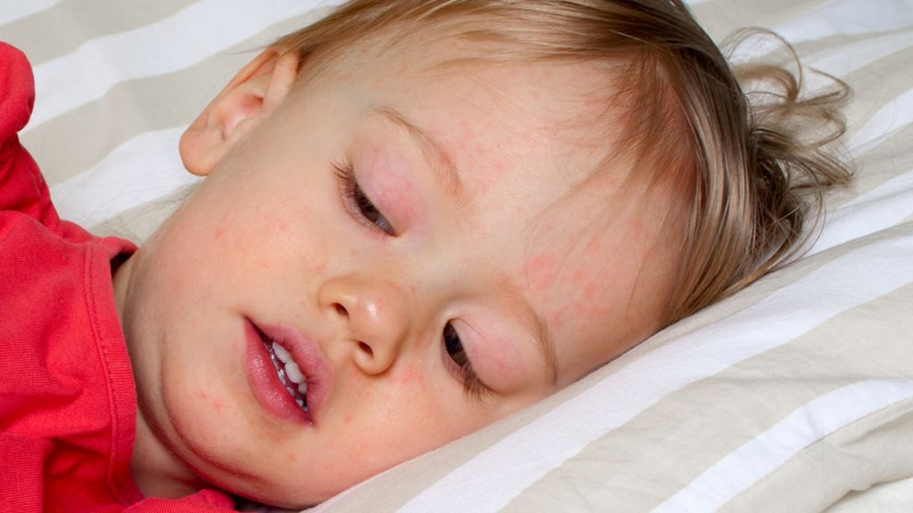 Scarlet fever cases hit 50-year high in England - BBC News Scarlet Fever