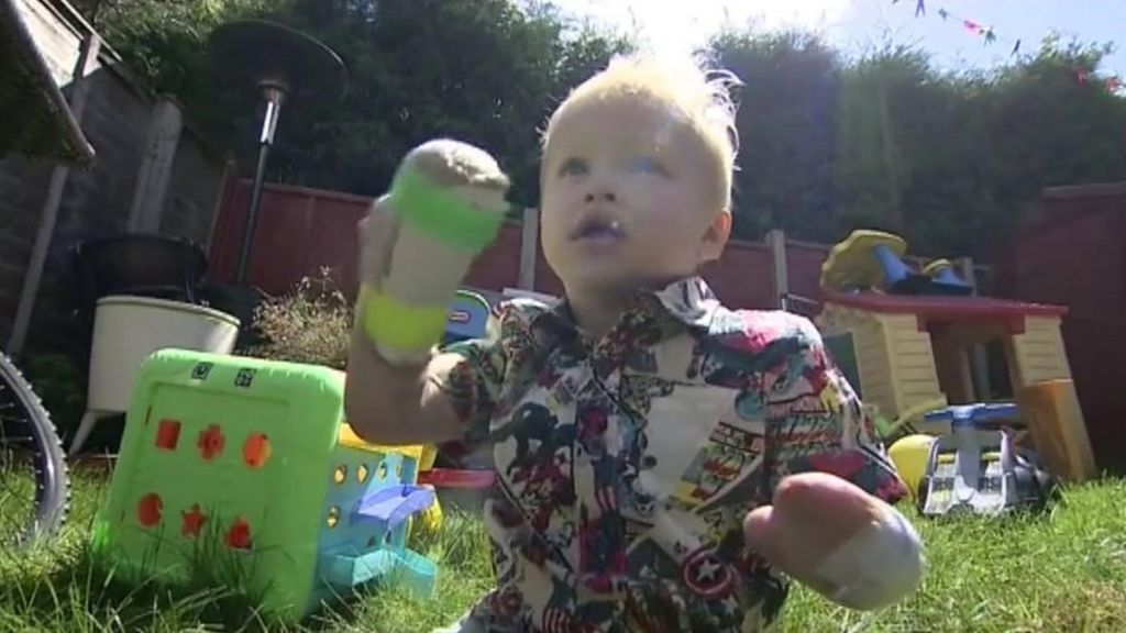 Two-year-old amputee 'strongest baby in the world' - BBC News
