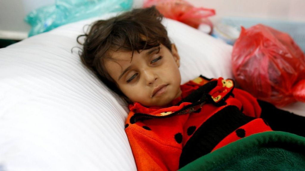 Yemen conflict: Cholera risk for more than a million children