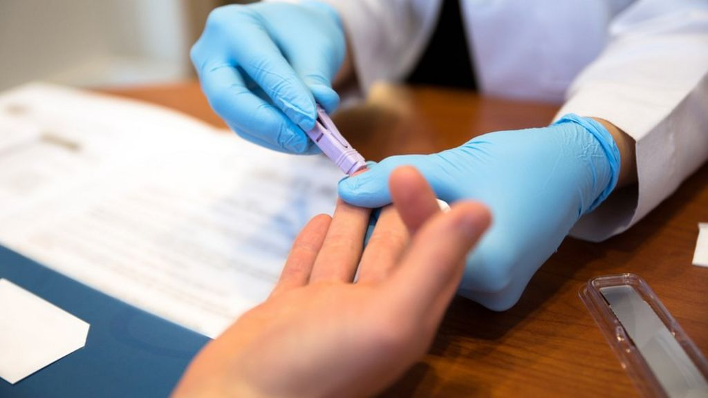 HIV tests for new GP patients 'can aid early diagnosis'