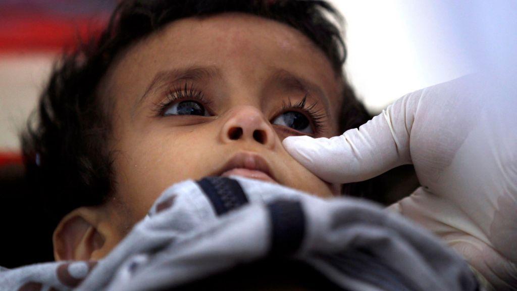 Yemen cholera cases pass 100,000 amid 'unprecedented' epidemic - BBC News