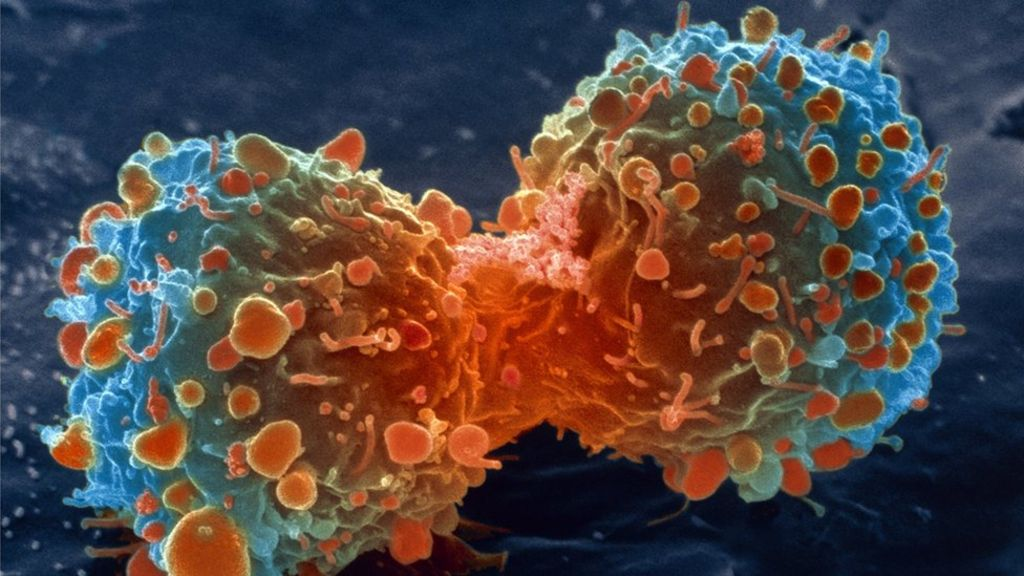 'Handful of changes' make cancer