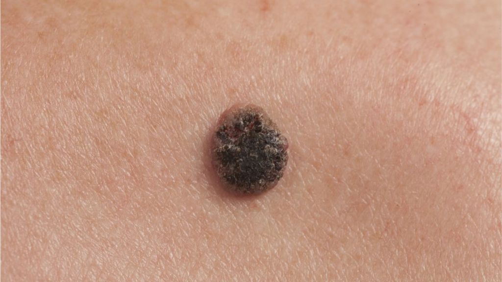 what is malignant melanoma and how do you treat it? - bbc news, Human Body
