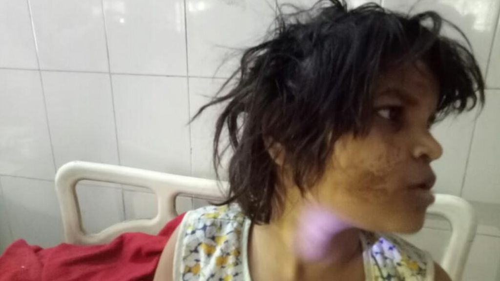 India Police Search For Parents Of Girl Living With Monkeys