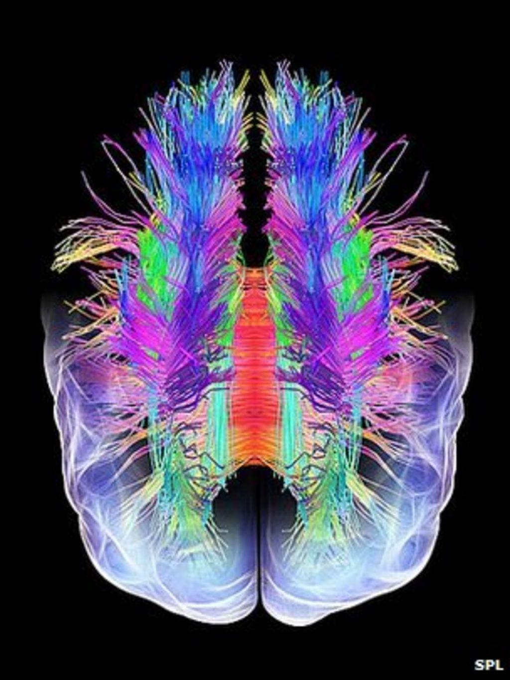 brain essay scan Using voxel based morphometry (vbm) applied to structural magnetic  resonance imaging (mri) scans of twenty social network site (sns).
