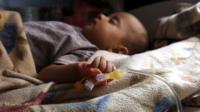 A cholera-infected Yemeni child receives treatment at a hospital in Sanaa, Yemen (6 July 2017)