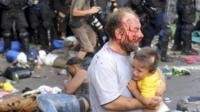 An injured migrant, with blood on his face, holds a child during clashes with Hungarian riot police at the border crossing with Serbia in Roszke