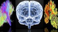 Computer images depicting brains