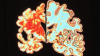 Scan of a brain of an Alzheimer's patient which shows significant signs of shrinking compared to an normal brain.