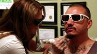 An ex-gangster gets a gang tattoo removed