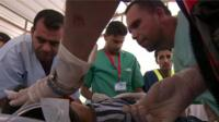 Medics treata child wounded in a UN-run school in Gaza after an Israeli attack in the area - 3 August 2014