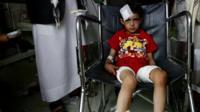 Injured child sits on wheelchair