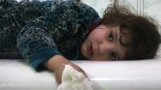 طفلة مصابة في الغوطة