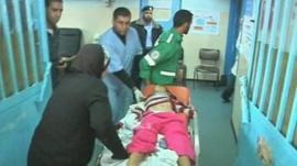 Injured girl on a stretcher in Gaza